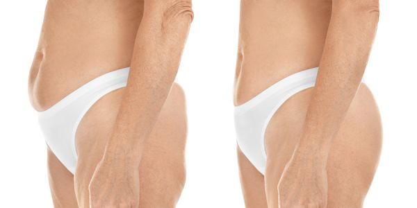 What To Expect After Liposuction