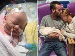 Heartbroken mother reveals her 14-day-old daughter died after catching herpes from a peck
