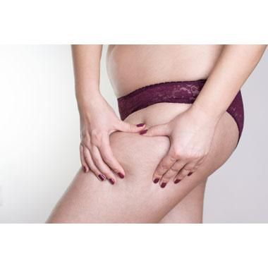Ultherapy With Radiesse Reduces Appearance of Cellulite