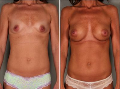 Breast Revision Case Studies