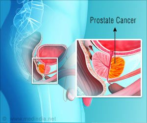New Genetic Marker Can Help Early Detection of Aggressive Prostate Cancer