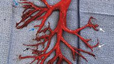 Man Coughed Up Rare Blood Clot That Is The Exact Shape Of Lung Passage