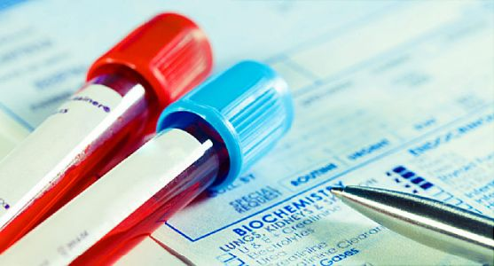 Blood Test Might Show Early Warning of Alzheimer's
