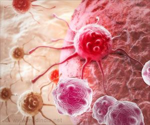 New Technology Takes Radiation Out of Cancer Screening