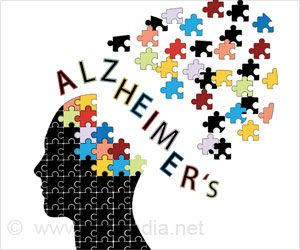 Chronic Inflammation Linked to Increased Alzheimer's Disease Risk