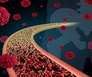 Organic Compounds for Tumors and Alzheimer's Disease