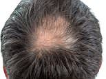 Could a drug designed for brittle bone disease provide a miracle cure for bald men?