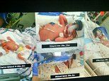 Pregnant cancer patient with 50% chance of life gives birth to healthy QUADRUPLETS