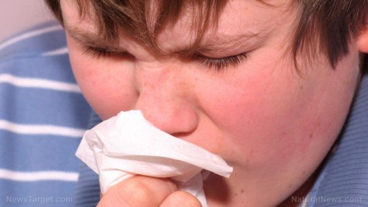 Naturally relieve a nosebleed with these potent acupressure points