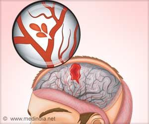 Stroke Risk and Sex Hormone-related Protein Levels Linked