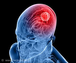 Combination of Drugs may Improve Survival in Brain Cancer