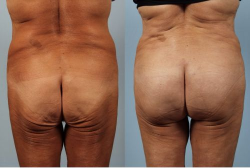 Brazilian Butt Lifts Are on the Rise in 2018