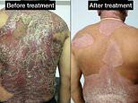 Six patients are reportedly cured of psoriasis after starting homeopathy