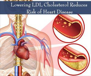 PCSK9 Inhibitors for Lowering Cholesterol May Reduce Heart Disease Risk