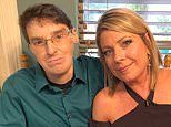 Face transplant recipient to go under the knife again to get a kidney transplant