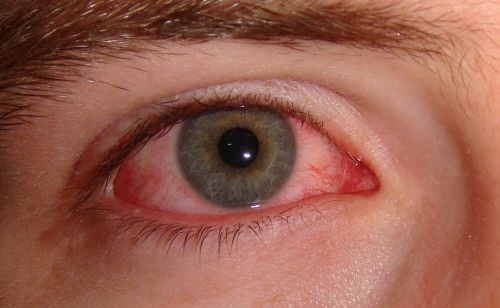 Viral pink eye seen in both symptomatic and asymptomatic coronavirus cases, making it a possible sign of infection