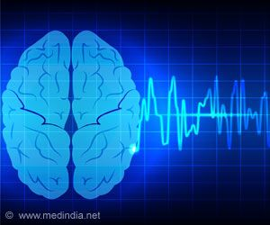 Brain Network Activity Helps Epileptic Patients