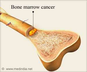 New Drug Offers Hope for Patients with Bone Marrow Cancer