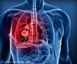 Proposed Cancer Treatment may Boost Lung Cancer Stem Cells