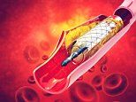 Stent operations 'are a waste of time' for angina