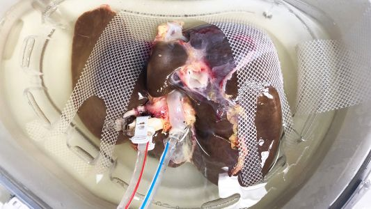 Cold Perfusion Cuts Liver Transplant Complications