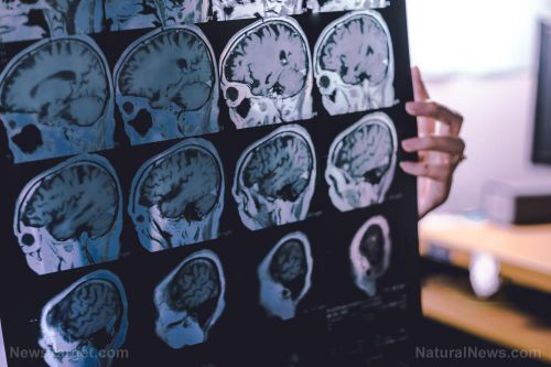 Antidepressants linked to dementia: Mental meds may just trade one condition for another