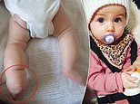 Mother of baby born with a clubbed foot feared she would die