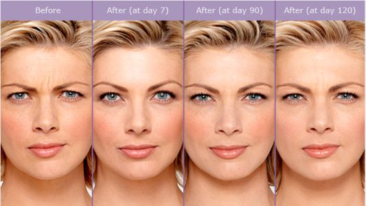 10 Common Myths About Botox