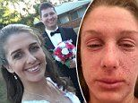 Bride, 24, with severe eczema woke up a week before her wedding with her eyes swollen shut