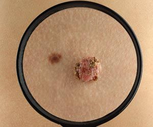Routine Drug may be Used to Prevent Few Skin Cancers