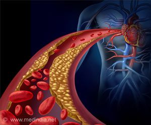 Fat Around Your Arteries may Keep Them Healthy: Study