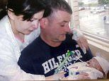 Parents' horror after their baby's skull was crushed
