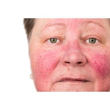 New PDL Device Safer and More Effective for Rosacea