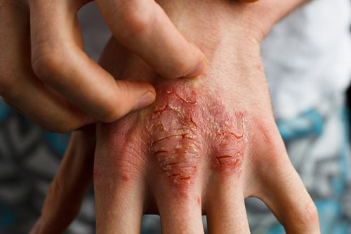 Traditional Chinese medicine is a safe, effective alternative for treating psoriasis