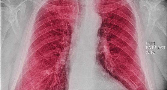 Another HIV Hazard: Higher Risk for COPD