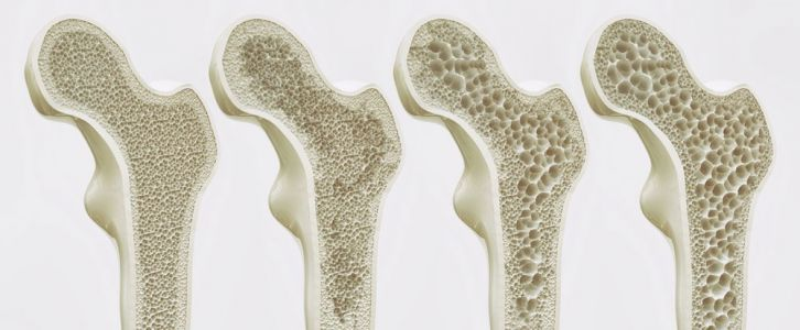 Can Consuming More Protein Boost Bone Health and Prevent Osteoporosis?