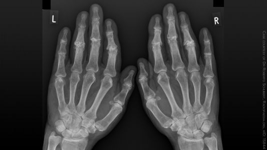 Effective Treatments for Hand Osteoarthritis: The Search Goes On