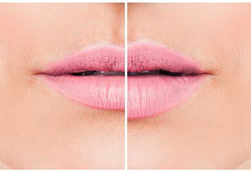 Can You Actually Look Happier With Lip Augmentation?