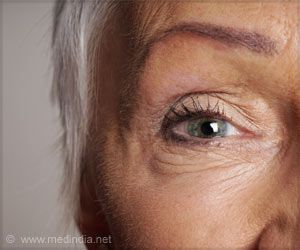 Poor Diet may be a Risk Factor for Age-related Macular Degeneration