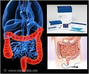 Negative Colonoscopies Linked to Lower Colorectal Cancer Risk