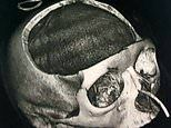 Woman, 22, has huge chunk of her skull removed after she was ploughed into by a car