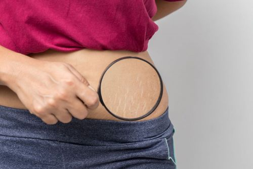 Is There a Cure for Stretch Marks?