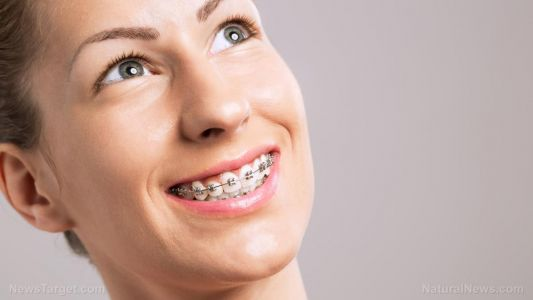 The risk of braces: Study finds dental correction doesn't always yield the expected confidence boost. Are the benefits worth the health risks?
