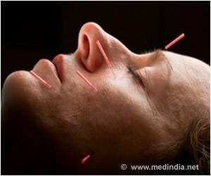 Acupuncture Improves Symptoms Associated With PTSD