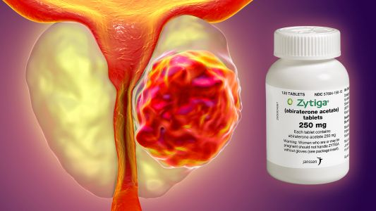 Unexpected Race-Based Findings in Novel Prostate Cancer Study