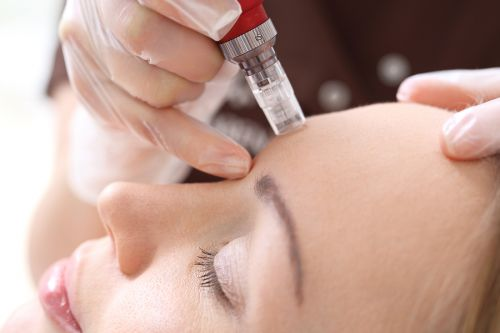 Four Things You Need to Know About Microneedling Treatment