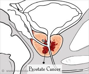 Artificial Intelligence Helps Detect Prostate Cancer