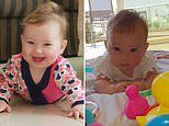 8-month-old girl caught measles before she could get her MMR shot