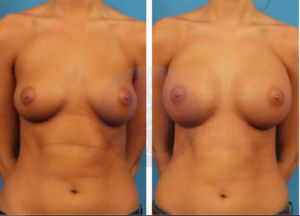 Your Guide to Breast Augmentation in Cary, NC
