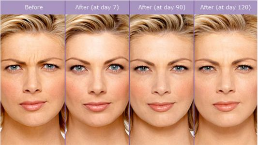 10 Questions about BOTOX® Cosmetic and JUVÉDERM®
